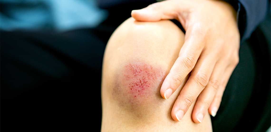 A brown and yellow bruise on a person's knee.