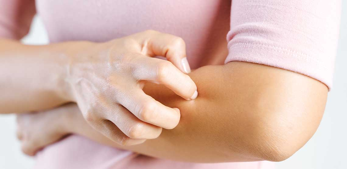 A person itching their arm.