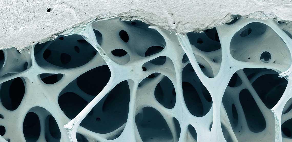 A microscopic view of bone.