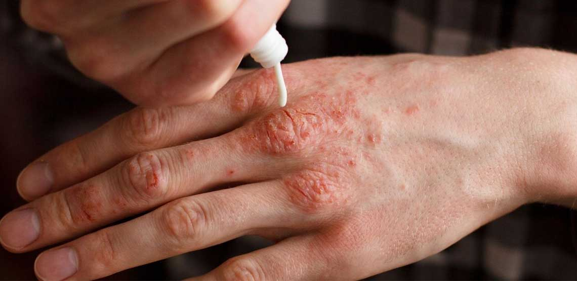A person applying lotion to psoriasis on their hands.