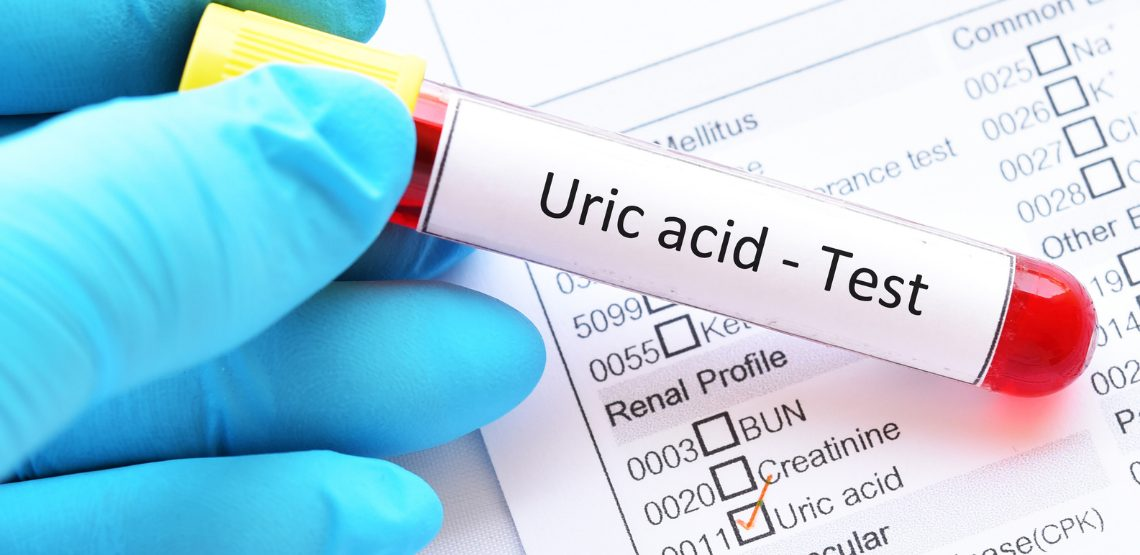 """A doctor holding a sample vial that says """"uric acid test"""""""